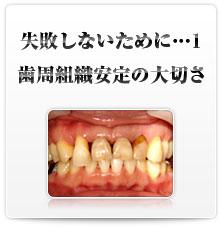 失敗しないために・・・1 歯周組織安定の大切さ
