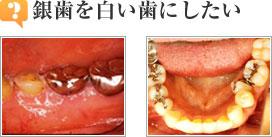 銀歯を白い歯に変えたい