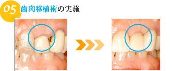 歯肉移植術の実施